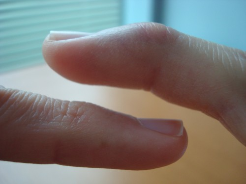 Comparing Pinky Fingers Side By Side